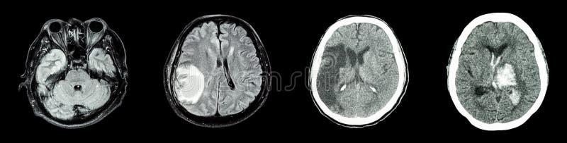 Inzamelingsct aftasten van hersenen en veelvoudige ziekte royalty-vrije stock fotografie