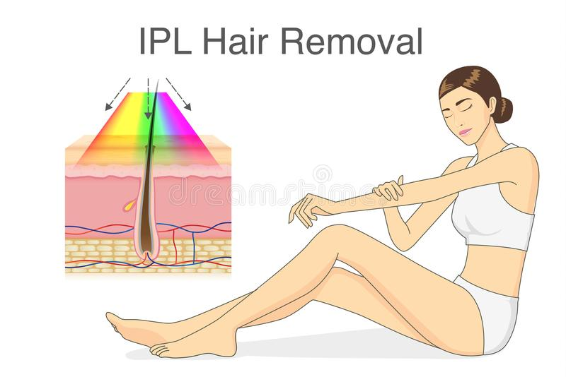 IPL light for hair removal on skin layer and beauty woman touching her skin. royalty free illustration