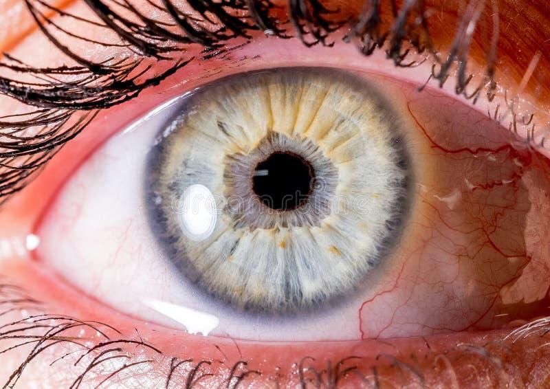 Irisphotographie Naher Makroschuß eines Augapfels sehr hellblau und weiß oder gelb mit Krater lizenzfreie stockfotos
