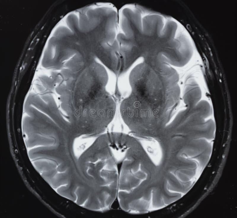 IRM de l'anatomie normale d'esprit humain image libre de droits