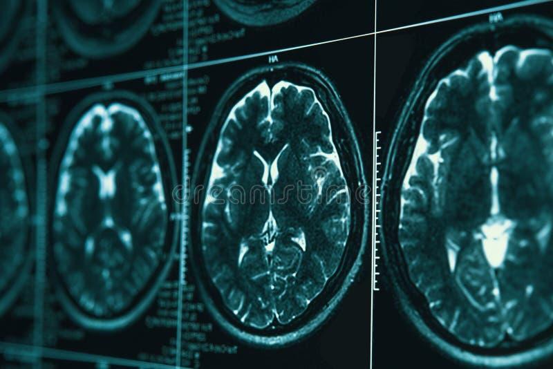 IRM ou image de résonance magnétique de tête et de balayage de cerveau Fermez-vous vers le haut de la vue photo libre de droits