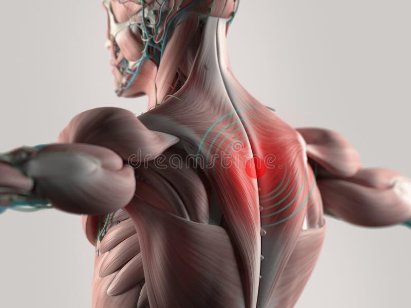 Irradiando a dor nas costas foto de stock