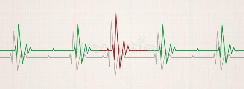 Irregular heart beat. Medicine banner illustrating irregular heart beat on ecg during monitor stock illustration
