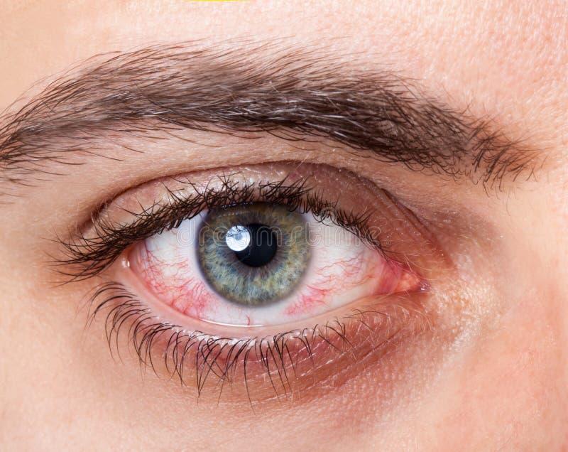 Irritated red bloodshot eye. Close Up of irritated red blood eye stock photos