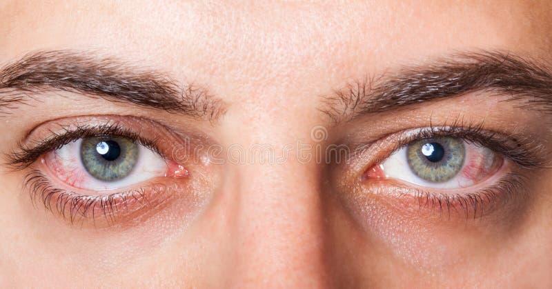 Irritated red bloodshot eye. Close Up of two irritated red blood eyes stock photos