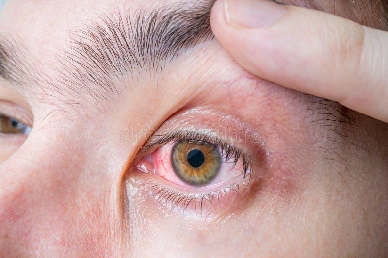 Irriterat och sårat rött öga royaltyfria foton