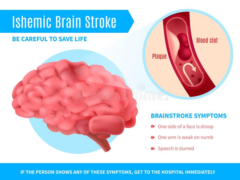 Ischemic Brain Stroke Poster royaltyfri illustrationer