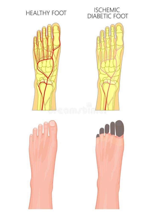Ischemic Cukrzycowa stopa ilustracji