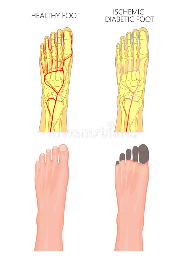 Ischemic Diabetic foot stock illustration