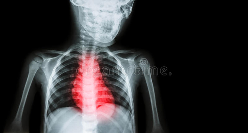 Ischemic Heart Disease , Myocardial Infarction ( MI ) ( Film x-ray body of human with heart disease and blank area at right side ) stock photography