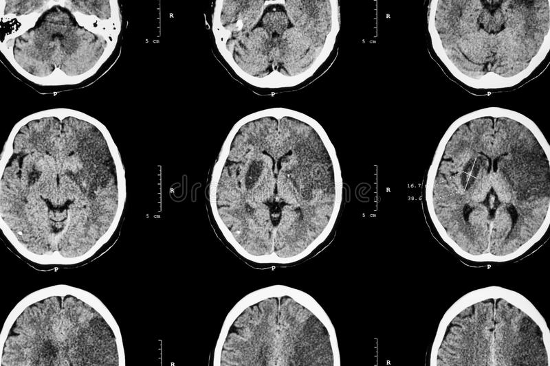 Ischemic stroke : ( CT of brain show cerebral infarction at left frontal - temporal - parietal lobe ) ( nervous system background royalty free stock photos