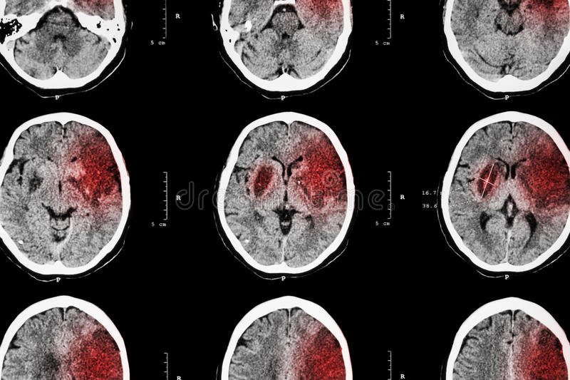 Ischemic stroke : ( CT of brain show cerebral infarction at left frontal - temporal - parietal lobe ) ( nervous system background. ) royalty free stock photos