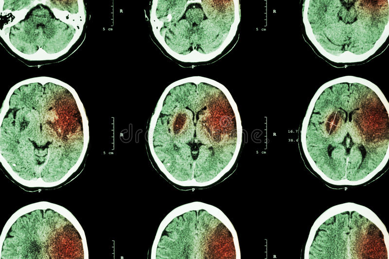 Ischemic stroke : ( CT of brain show cerebral infarction at left frontal - temporal - parietal lobe ) ( nervous system background. ) royalty free stock image
