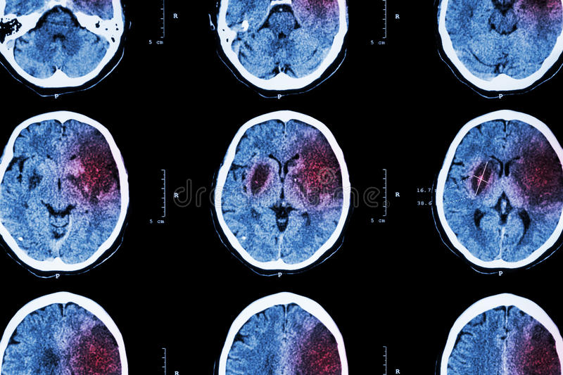Ischemic stroke. ( CT of brain show cerebral infarction at left frontal - temporal - parietal lobe ) ( nervous system background royalty free stock images