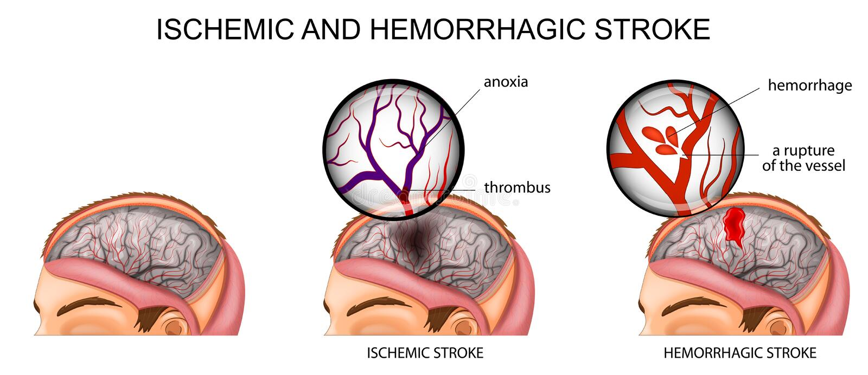 Ischemische en hemorrhagic slag royalty-vrije illustratie