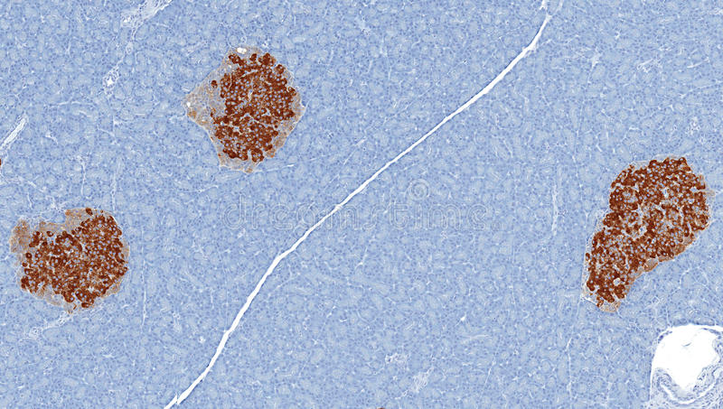 Islets of Langerhans stained brown for Insulin. Pancreatic islets of langerhans stained for insulin (brown). Islets secrete insulin necessary for glucose royalty free stock photography