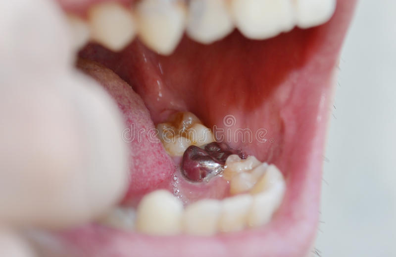 Issues for Oral Care, Caries, tartar, gum disease, dental problems, bad teeth, dental problems, dentistry,Crown on the. Issues for Oral Care, Caries, tartar, gum royalty free stock photos