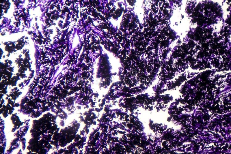 Istopatologia della silicosi, micrografo leggero fotografie stock libere da diritti