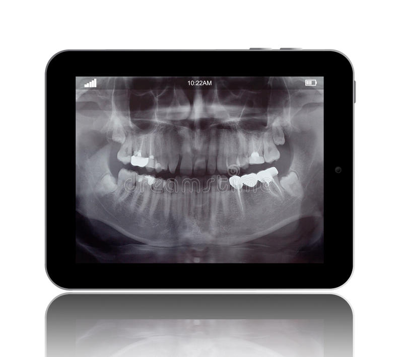 Istoty ludzkiej Teeths promieniowanie rentgenowskie na Cyfrowej pastylce zdjęcie stock