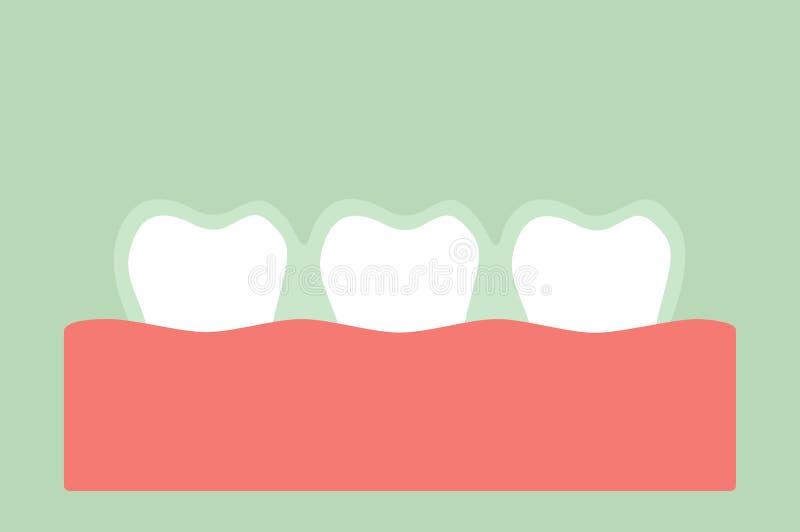 Istruttore del silicone di usura di denti o ganci invisibili illustrazione vettoriale