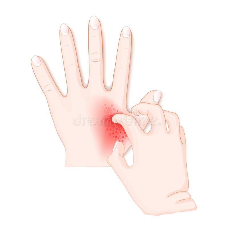 Itch. Human`s hands with dermatitis stock illustration
