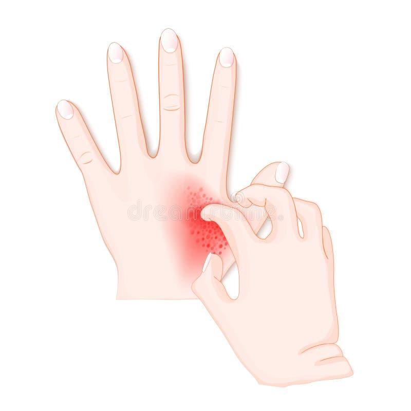 itch Mãos humanas do ` s com dermatite ilustração stock