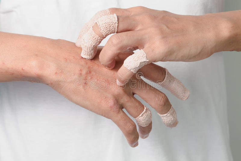Itching caused by allergies, skin women. stock photo