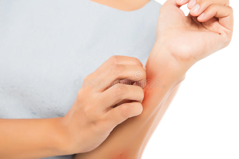 Itching. Girl scratch the itch with hand, Arm, Itching, Concept with Healthcare And Medicine royalty free stock photos