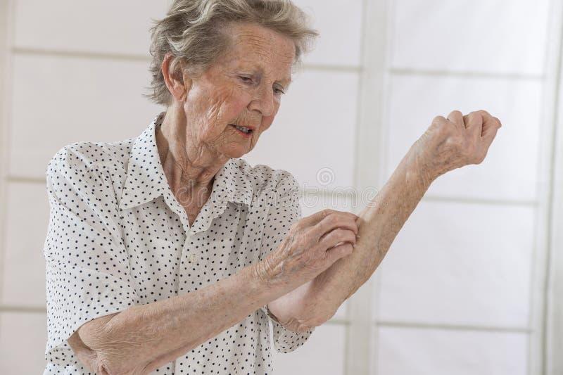 Itching nella donna anziana di A immagini stock libere da diritti