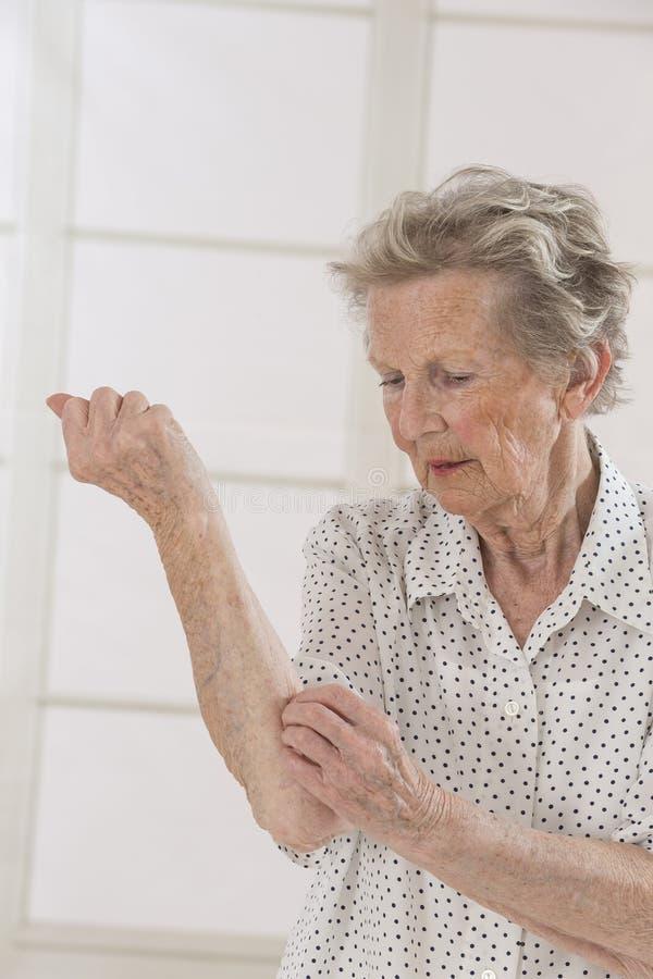Itching nella donna anziana di A fotografia stock