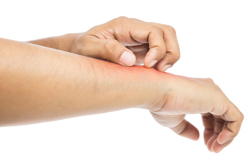 Itching. People scratch the itch with hand. itching, Concept with Healthcare And Medicine royalty free stock image