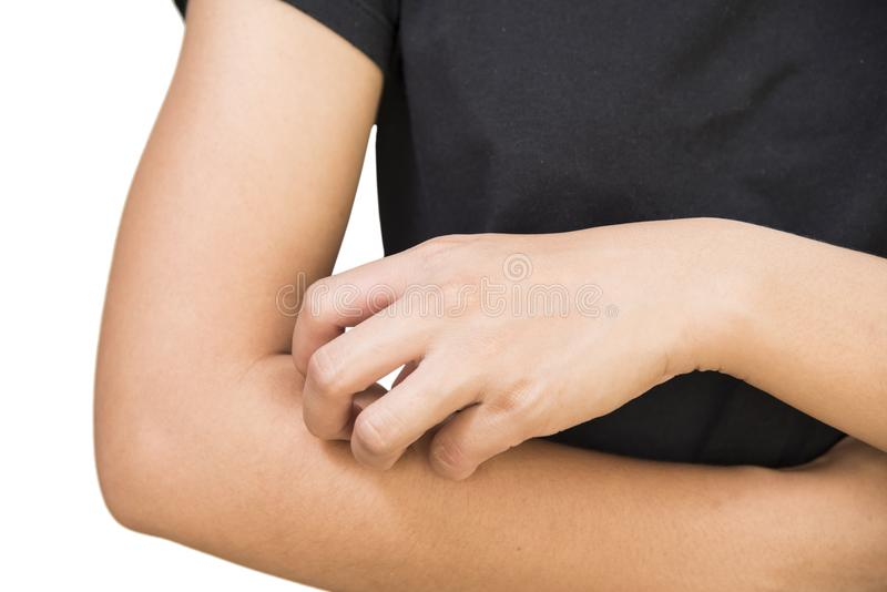Itching of skin diseases from allergy, and rash. Concept with healthcare and medicine royalty free stock photos