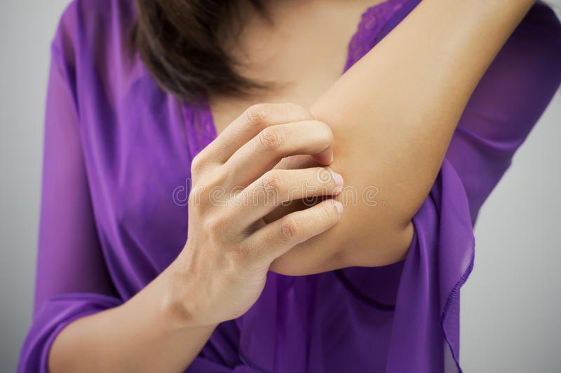 Itching. Woman scratching her arm, Woman itching her elbow stock photos