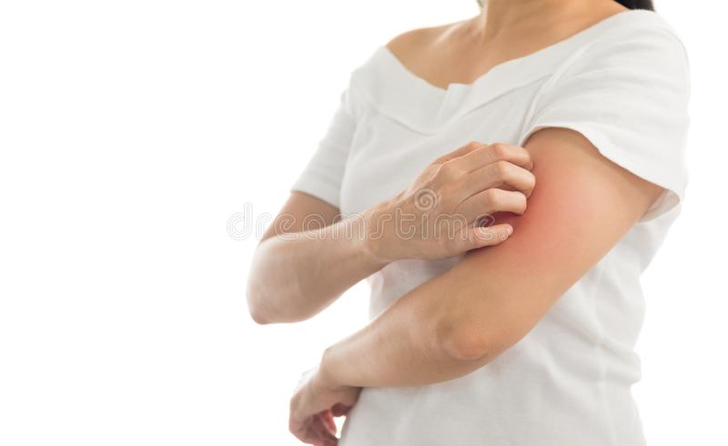Itching in women. Itching of skin diseases in women using the hand-scratching. Red around the Itching area. Concept with Healthcare And Medicine royalty free stock photography