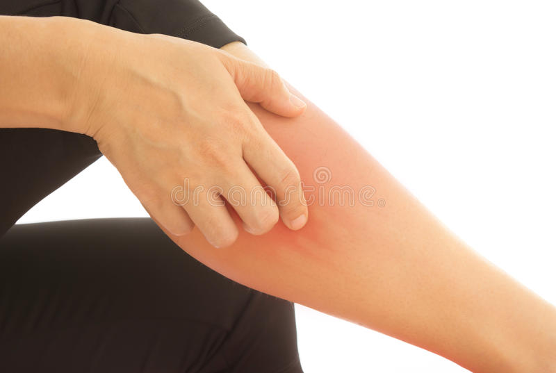 Itching in women. Itching of skin diseases in women using the hand-scratching. Concept with Healthcare And Medicine stock image