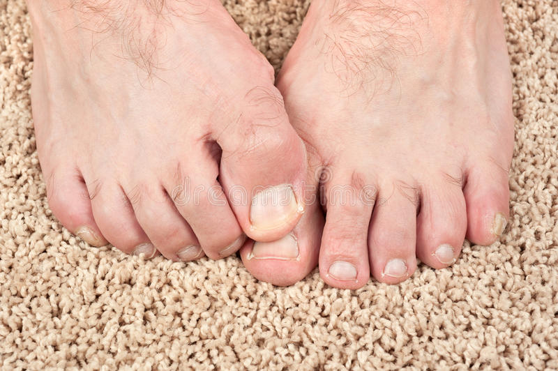 Itchy feet. A man with itchy feet uses his big toe to scratch his other foot. Good for grooming inferences as well stock photo
