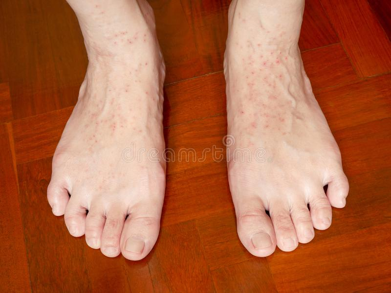 An itchy skin rash on woman`s feet. Caused by allergic eczema. Health and skin problems stock photography