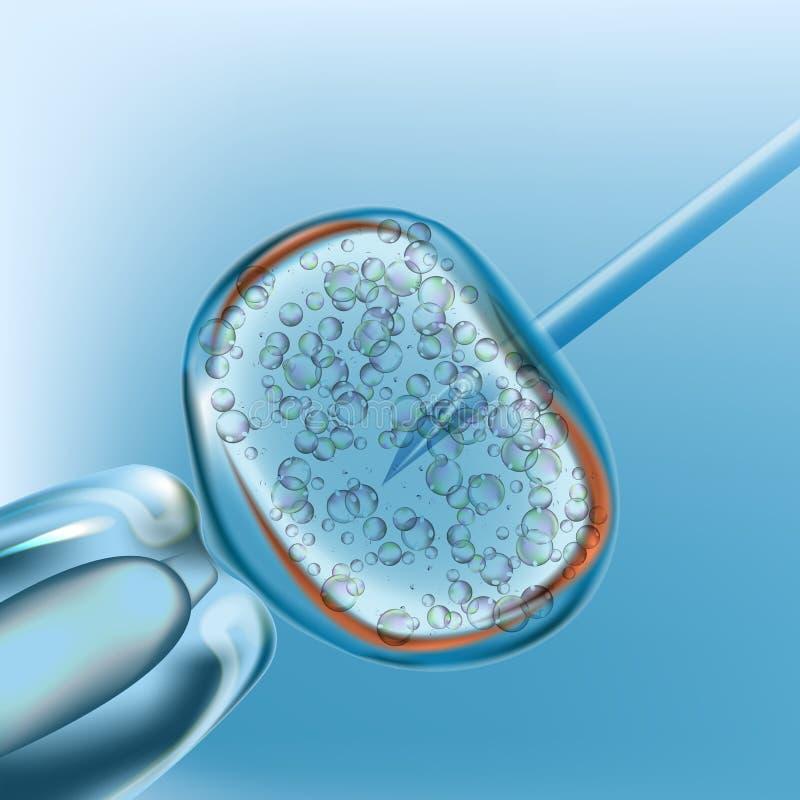 IVF τεχνητή γονιμοποίηση Ρεαλιστικό διανυσματικό σχέδιο ελεύθερη απεικόνιση δικαιώματος