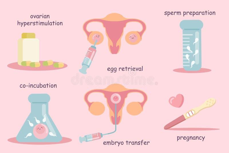 IVF-begrepp royaltyfri illustrationer