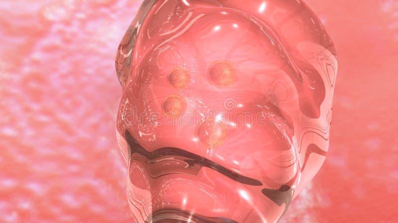 IVF-Embryooverdracht vector illustratie