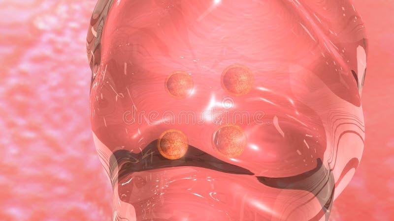 IVF-Embryooverdracht stock illustratie