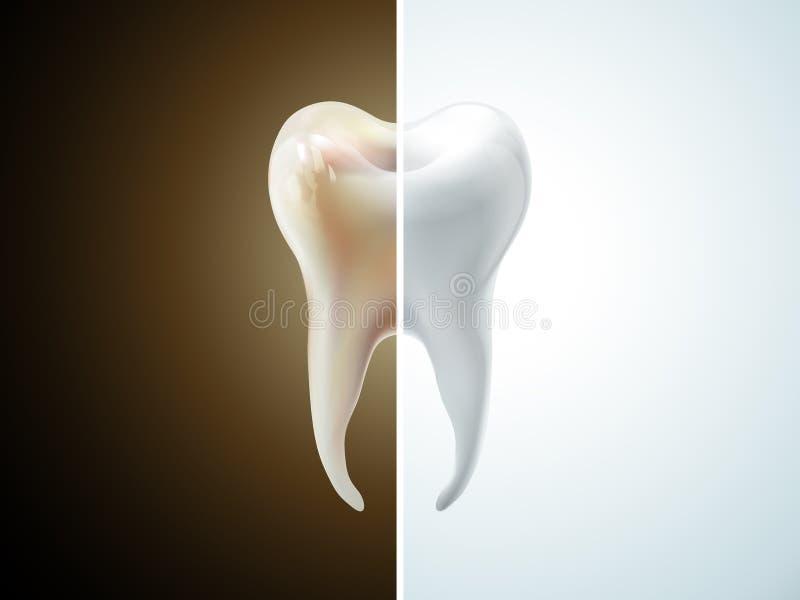 Jämförelse av tanden royaltyfri illustrationer