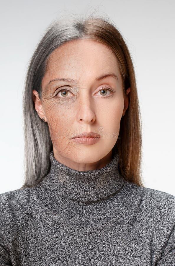 jämförelse Ståenden av den härliga kvinnan med problem och rengöringen flår, åldras och ungdombegreppet, skönhetbehandling arkivfoton