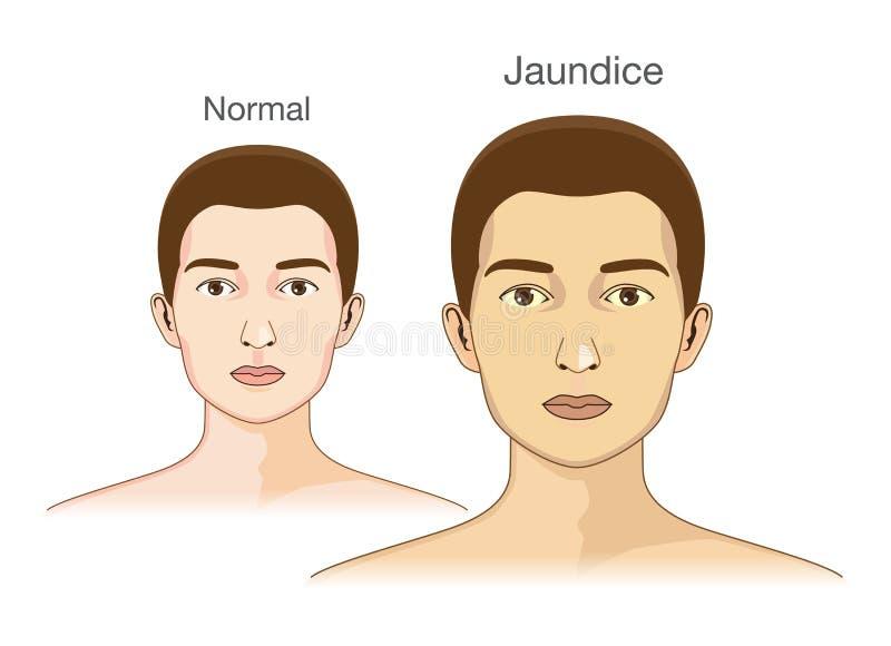 Jämförelsen mellan normalt hudfolk och att gulna från gulsot stock illustrationer