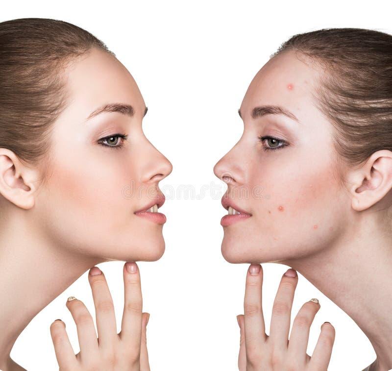 Jämförelsestående av problematisk hud arkivfoto