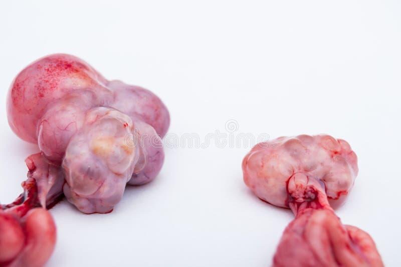 Jajniki locha w prawej stronie, s? normalnym jajnikiem i w lewej stronie jest jajnik z cystami fotografia royalty free