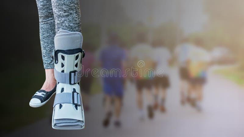 Jambe cassée avec l'attelle courte pour le traitement de la femme blessée stan photographie stock libre de droits