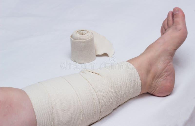 Jambe d'une femme agée bandée avec un bandage élastique contre des veines variqueuses sur la jambe, phlebeurysm en gros plan et b image libre de droits