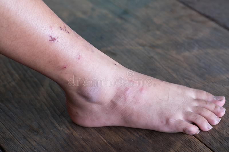 Jambe de blessure, syndrome diabétique de pied photos stock
