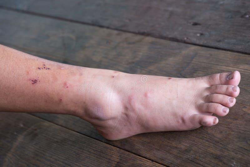 Jambe de blessure, syndrome diabétique de pied image stock